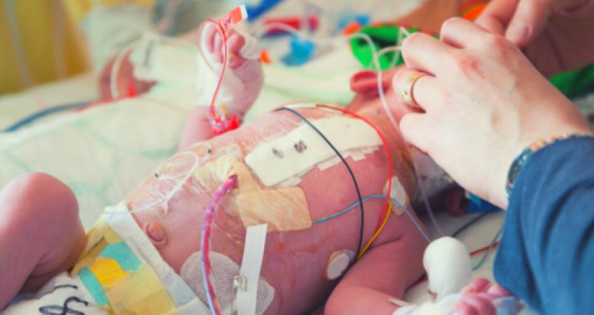 bebe cardiopata